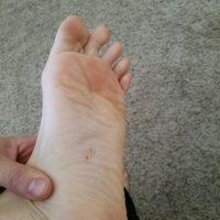 Immediate skin irritation on feet. (Photo: Chris Harris)