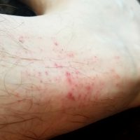 Skin rashes after coming into contact with contaminated water at border. (Photo: Chris Harris)